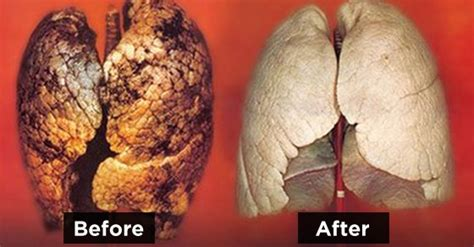 Can You Smoke Cigarettes While Detoxing by How To Purify Your Lungs In 72 Hours Worldtruth Tv