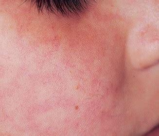 allergy rash rash from gluten intolerance breeds picture
