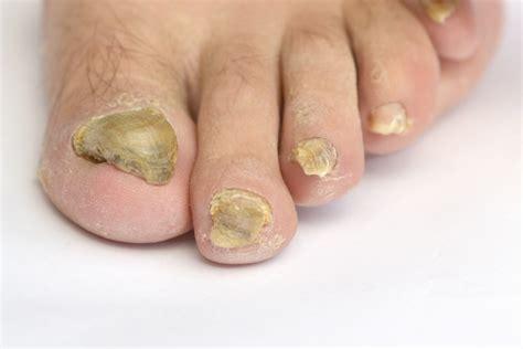 Fußnägel Lackieren Bei Nagelpilz by Fungo Na Unha Dicas Essenciais Para Prevenir Esse Problema