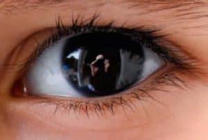 Obat Memutihkan Bola Mata Yang Kuning cara memutihkan bola mata secara alami tanpa efek sing