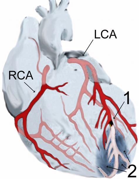 infarto miocardio cause sintomi emergenza e cure infarto agudo de miocardio wikipedia la enciclopedia libre