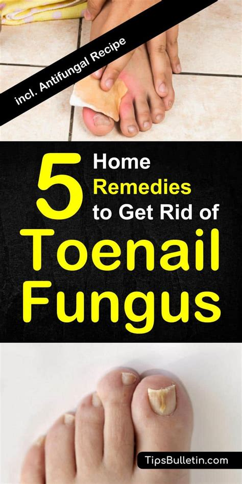 get rid of that builder cabinet look without the price of how to get rid of toenail fungus 5 home remedies