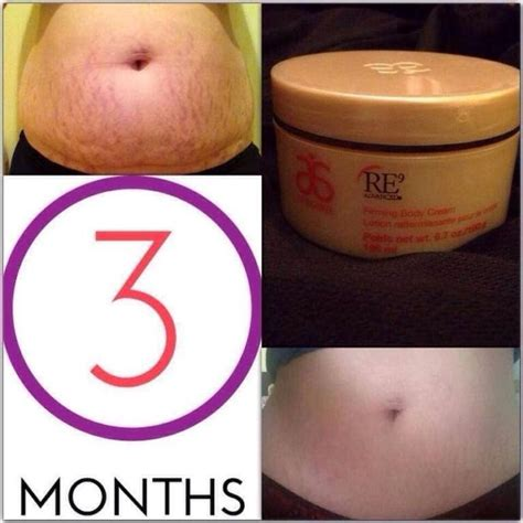 Detox For Stretch Marks by 1317 Best How To Get Rid Of Stretch Marks Images On