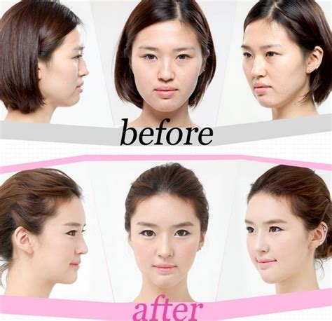Asian Plastic Surgery Meme - it s about our world hasil menakjubkan operasi plastik di