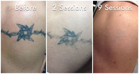 laser tattoo removal after one session 100 laser removal how a laser removal