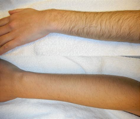 fda approved pain free laser hair removal at rejuve med