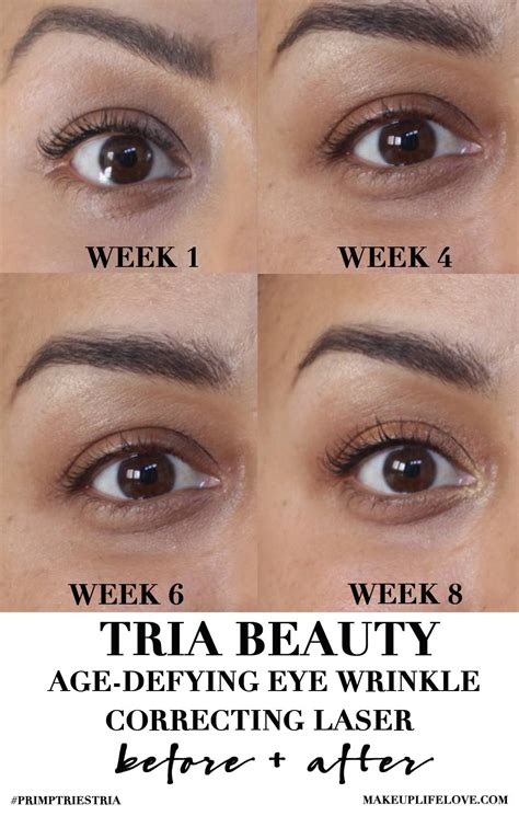 how well does tria age defying laser work on deep acne scars reversing time with tria beauty age defying eye wrinkle
