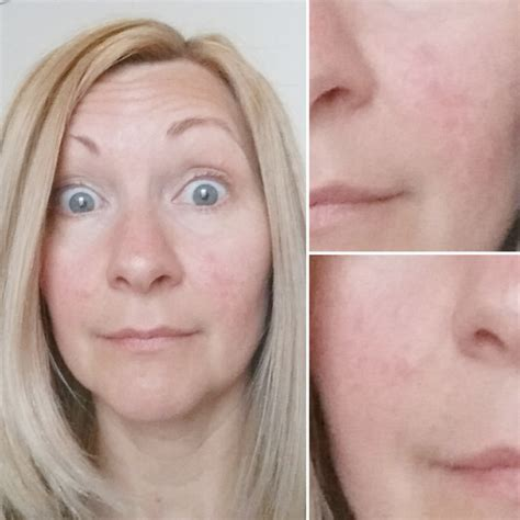 Rosacea Detox by Diy Rosacea Skincare Detox By Confessions Of A Refashionista