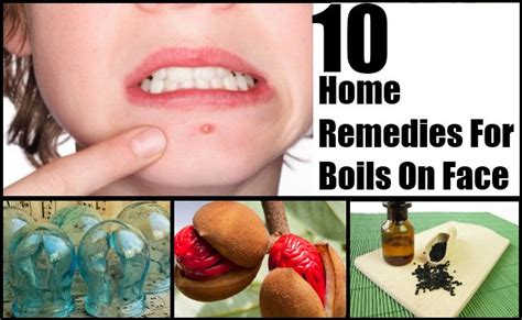 boils home remedies treatment causes 4 home remedy for