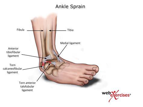 sprained ankle ankle sprain nasm
