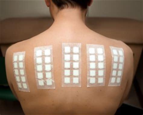 pach test patch testing dr tim clayton manchester dermatologist