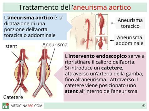 rottura vasi sanguigni aneurisma dell aorta ascendente o discendente sintomi ed