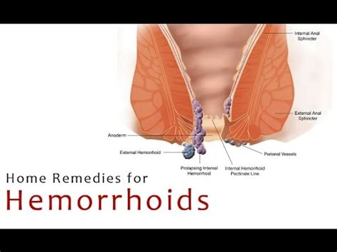 4 remedies for hemorrhoids