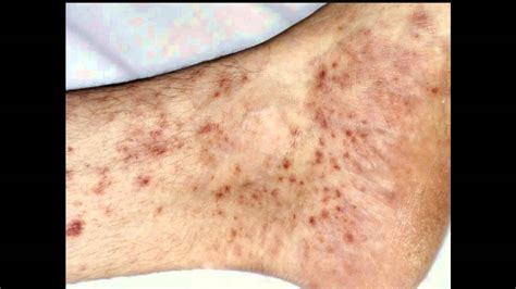 Detox Rash On Foot by Itchy Ankles Causes Signs Treatment