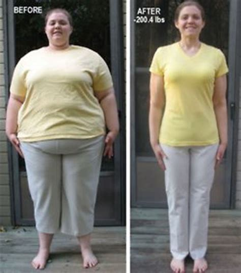 Amazing Weight Loss by Amazing Weight Loss 1funny