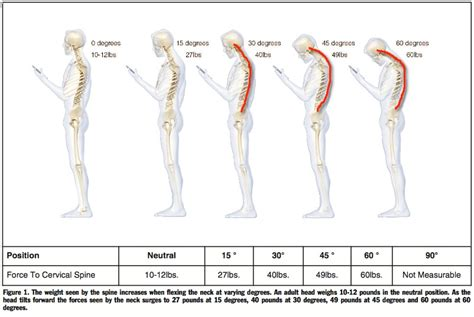 Good Posture At Desk Neck Pain Look Up The Posture Clinic