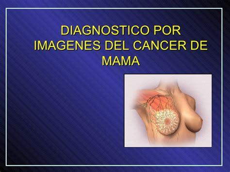 imagenes reflexivas de mama diagnostico por imagenes del cancer de mama