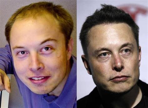 Elon Musk Now And Then | how did elon musk grow his hair back quora