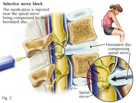 managing acute with nerve blocks a guide for patients books nerve block nerve block on leg