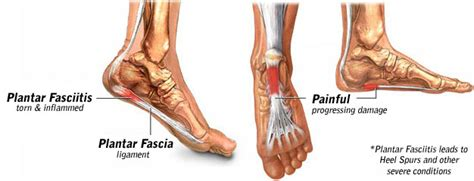 Planters Fascia by Hacking Plantar Fasciitis Curing The Bite Of