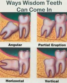 Comfort Dental Of Lafayette Dental Extraction Comfort Dental Lafayette Indiana