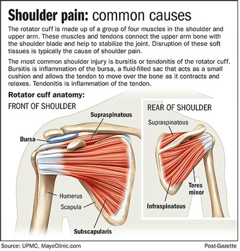 shoulder pain after c section shouldering the pain rotator cuff problems increase with