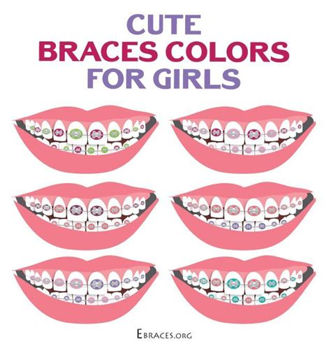 braces color ideas you don t to be a genius to choose braces colors