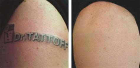 tattoff tattoo removal removal before and after yelp