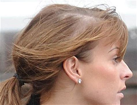 thinning hair in women on top of head coleen rooney s hair loss extensions stress or genetics