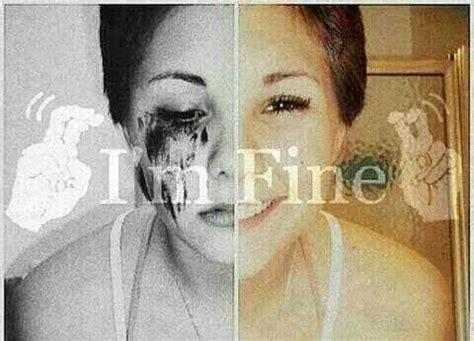 imagenes suicidas i m fine imagenes suicidas on twitter quot quot i m fine quot http t co