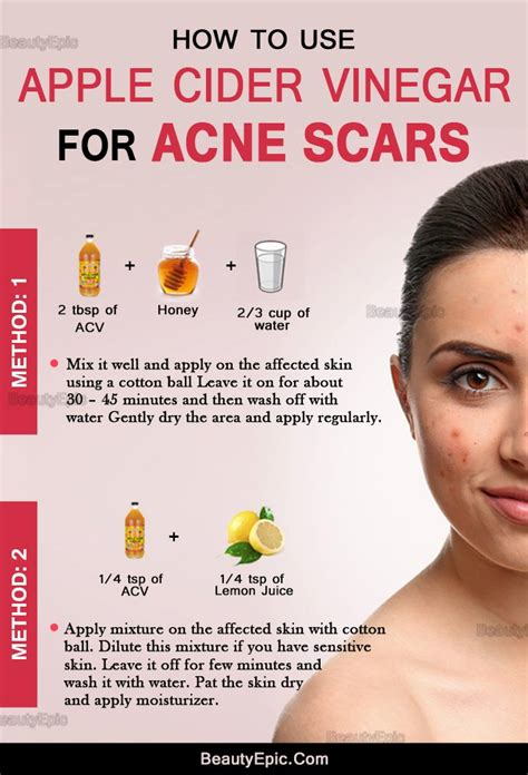 how to get rid of acne scars quickly with apple cider vinegar