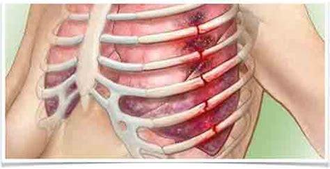 dolori gabbia toracica sintomi kaburga a茵r莖s莖 belirtileri ve tedavisi agrisi tr