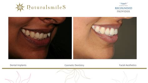 invisalign   month smiles  day offer natural