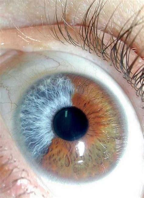 imagenes ojos raros 15 ojos humanos reales que son impresionantes para los