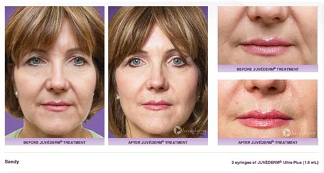 juvederm before amp after photos bella sol med spa