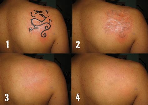 dermerase laser tattoo removal clinic in sittingbourne kent