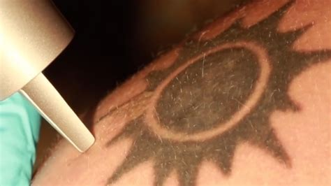 how do lasers remove tattoos by helping you them out
