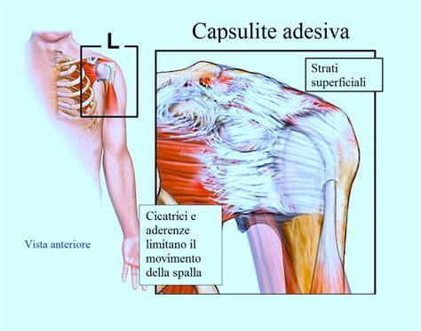 mal di testa notturno cause dolore alla spalla persistente notturno o alzando il