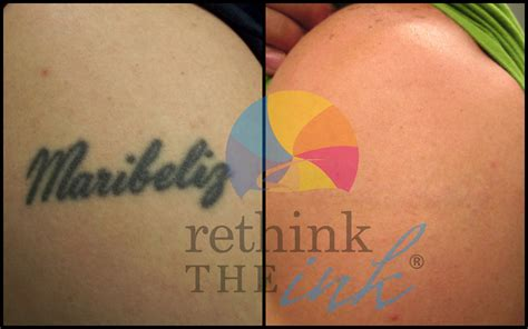 removing red tattoo ink removal before and after picturesrethink the ink