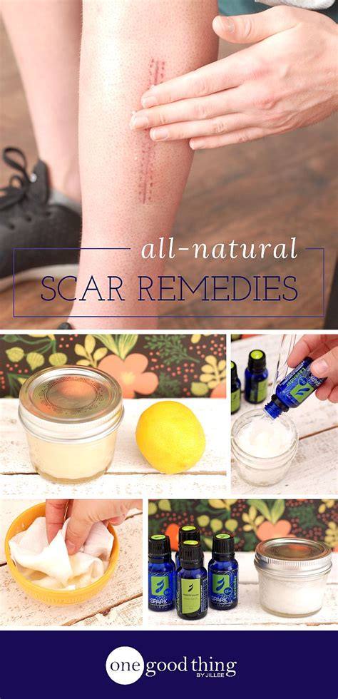 natural remedies to remove tattoos home remedies to heal scars naturally lavender essential
