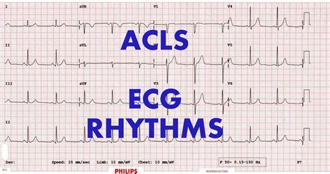Free cardiac powerpoint templates free animated powerpoint printable acls cheat sheets review ebooks toneelgroepblik Images