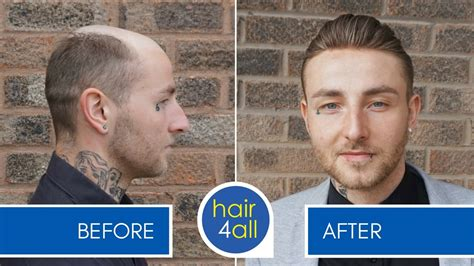 mens hair replacement systems how effective is a hair replacement system for men at the