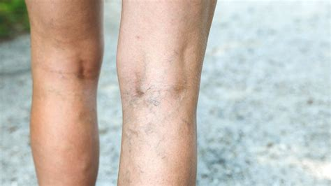 tattoo over varicose veins how to prevent and treat 8 common skin conditions