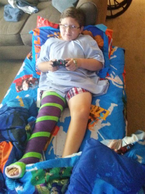 Aiden Snow S Leg Lengthening This Blog Is To Keep People Leg By Aiiden