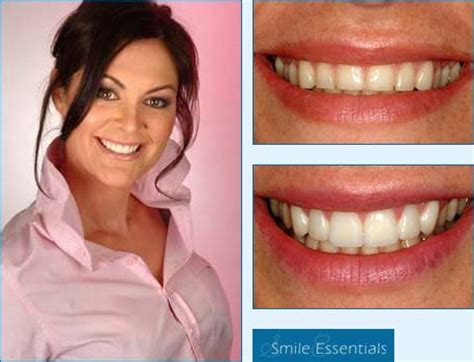 family dentistry veneers cost