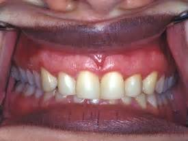 surgical esthetic correction for gingival pigmentation esthetic crown lengthening forest hills ny