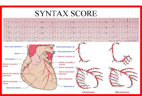 vasi coronarici syntax score indice di anatomia coronarica times