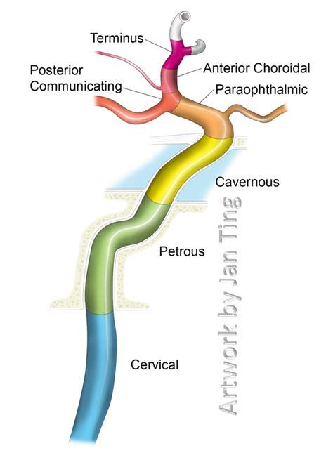 carotide interna carotid artery and its aneurysms neuroangio org