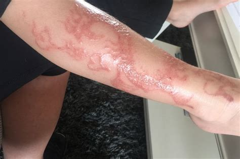 henna tattoo allergy scar pop warns of black henna danger after it did
