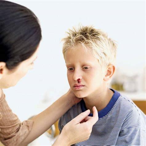 quando esce sangue dal sedere sangue dal naso nei bambini 6 situazioni in cui